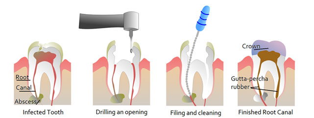 Single Visit Root Canal Treatments